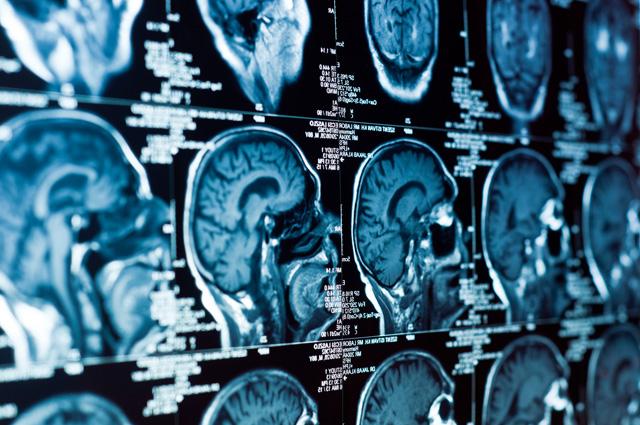 Хирургическое лечение опухолей мозга в Израиле