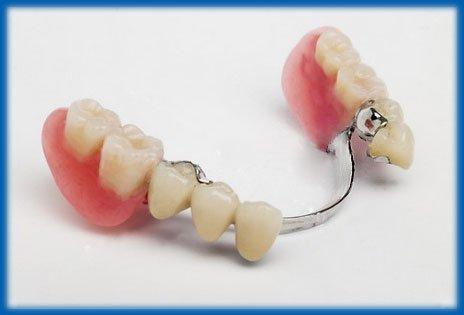 Съемные зубные протезы в Твери