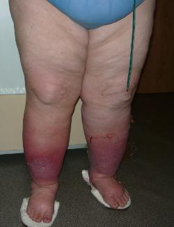 Лимфедема и отек ног. В чем разница?