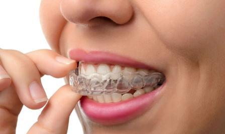 Как выровнять зубы без брекетов? Элайнеры