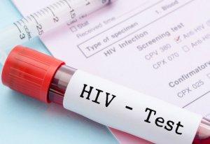 Кубанца 13 лет лечили от СПИДа, которого не было