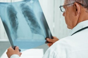 Чем опасен отказ от вакцины против туберкулёза