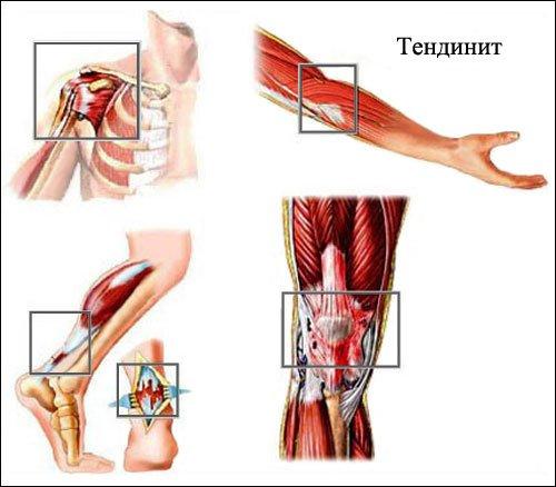 Характеристика тендинита: что это, симптомы и лечение заболевания