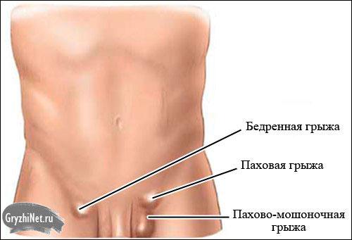 Обзор всех характерных симптомов паховой грыжи у мужчин