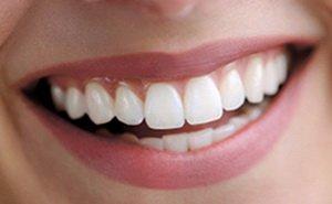 Протезирование зубов в клинике доктора Дергунова